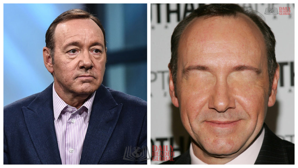 Kevin Spacey without eyes
